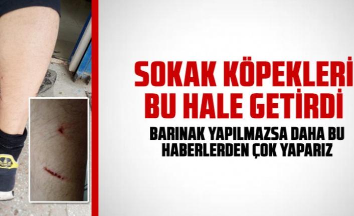 TOKİ'de sokak köpekleri çocuğa saldırdı Kaynak: TOKİ'de sokak köpekleri çocuğa saldırdı