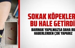 TOKİ'de sokak köpekleri çocuğa saldırdı...